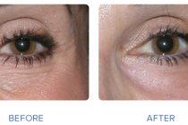 Best Treatment for Under Eye Wrinkles 2019